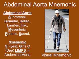 Visual mnemonic for Abdominal Aorta Branches List