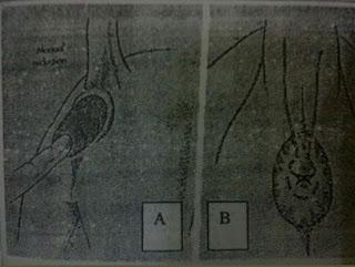Teknik Operasi Reposisi Dan Amputasi Prolapsus Rektum