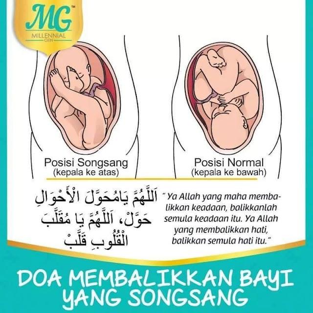 Doa Membalikkan Bayi Songsang