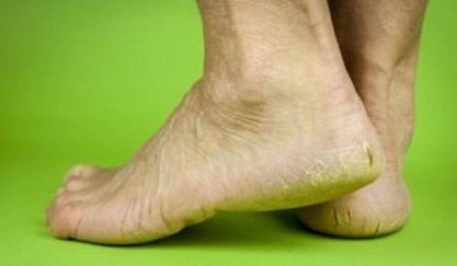 La hemorragia de varikozno de las venas extendidas de los pies