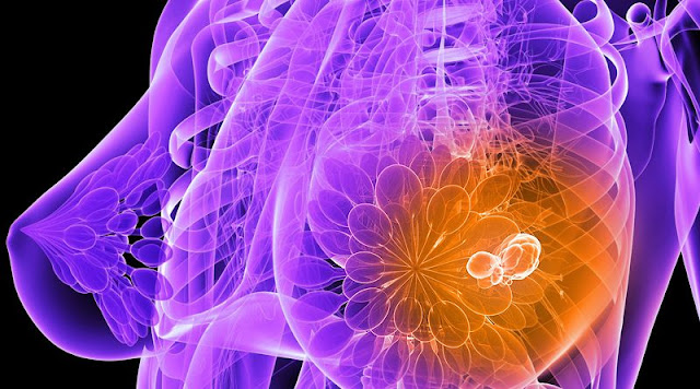 Scientists in Amsterdam Just Destroyed Breast Cancer Tumors in 11 Days WITHOUT Chemotherapy