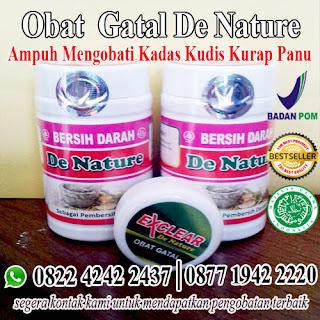 obat kadas tradisional