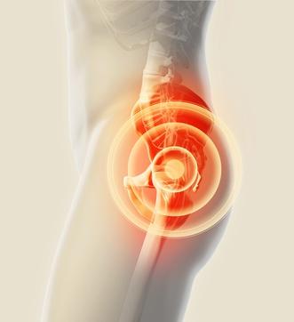 Hip Pain Deconstructed Texas Orthopedics