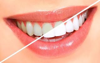 الان الحل الامثل لتبييض الاسنان في المنزل