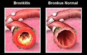 Penyebab Bronkitis & Obat Bronkitis Alami, Ampuh Mengobati Bronkitis Secara Alami