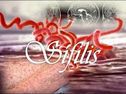 penyebab sipilis, penyebab sipilis pada pria, penyebab sipilis pada wanita, penyebab sipilis wanita, penyebab sipilis dan cara pencegahannya, penyebab sipilis pada manusia adalah, penyebab sipilis kambuh lagi, penyebab sipilis dan obatnya, penyebab sipilis raja singa, penyebab sipilis pada manusia, penyebab sipilis dan gejalanya, penyebab sifilis adalah, penyebab sipilis kambuh, penyebab sipilis apa, penyebab sipilis pada pria dan wanita, penyebab penyakit sipilis dan pengobatannya, penyebab penyakit sipilis kumpulan tips, faktor penyebab sipilis, penyebab penyakit sipilis adalah, penyebab sipilis atau raja singa, penyebab awal sipilis, penyebab sifilis atau raja singa, penyebab bakteri sifilis, penyebab penyakit sipilis dan cara pencegahannya, penyebab dan ciri-ciri sipilis, penyebab dari sifilis, penyebab sifilis dan gonore, penyebab sifilis dan gejalanya, sifilis penyebab dan gejala, penyebab sipilis pada pria, penyebab sipilis pada wanita, penyebab sipilis wanita, penyebab sipilis dan cara pencegahannya, penyebab sipilis pada manusia adalah, penyebab sipilis kambuh lagi, penyebab sipilis dan obatnya, penyebab sipilis raja singa, penyebab sipilis pada manusia, penyebab sipilis dan gejalanya, penyebab sifilis adalah, penyebab sipilis kambuh, penyebab sipilis apa, penyebab sipilis pada pria dan wanita, penyebab penyakit sipilis dan pengobatannya, penyebab penyakit sipilis kumpulan tips, faktor penyebab sipilis, penyebab penyakit sipilis adalah, penyebab sipilis atau raja singa, penyebab awal sipilis, penyebab sifilis atau raja singa, penyebab bakteri sifilis, penyebab penyakit sipilis dan cara pencegahannya, penyebab dan ciri-ciri sipilis, penyebab dari sifilis, penyebab sifilis dan gonore, penyebab sifilis dan gejalanya, sifilis penyebab dan gejala, penyebab gejala sipilis, penyebab gejala sifilis, penyebab dan gejala sipilis, sifilis penyebab hiv, penyebab infeksi sifilis, penyebab sifilis pada ibu hamil, penyebab kena sipilis, penyebab kambuhnya sipilis, penyeba