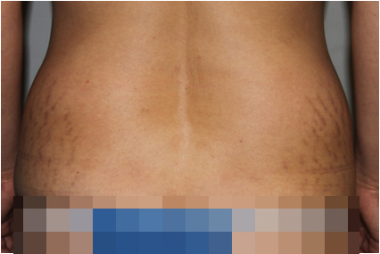 gynecomastia p/s korea: Lipoabdominoplasty Remove Belly Fat Silhouette