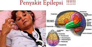 Cara mengobati penyakit epilepsi