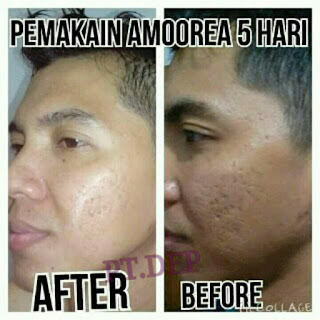 5 Testimoni sabun amoorea di Kota Yogyakarta