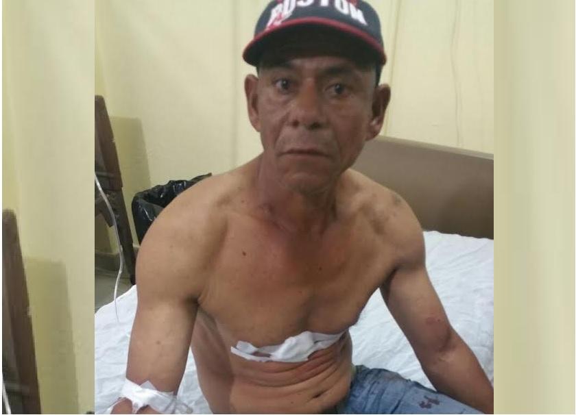 SALCEDO: 7 personas heridas en atraco, roban 700 mil pesos y camioneta