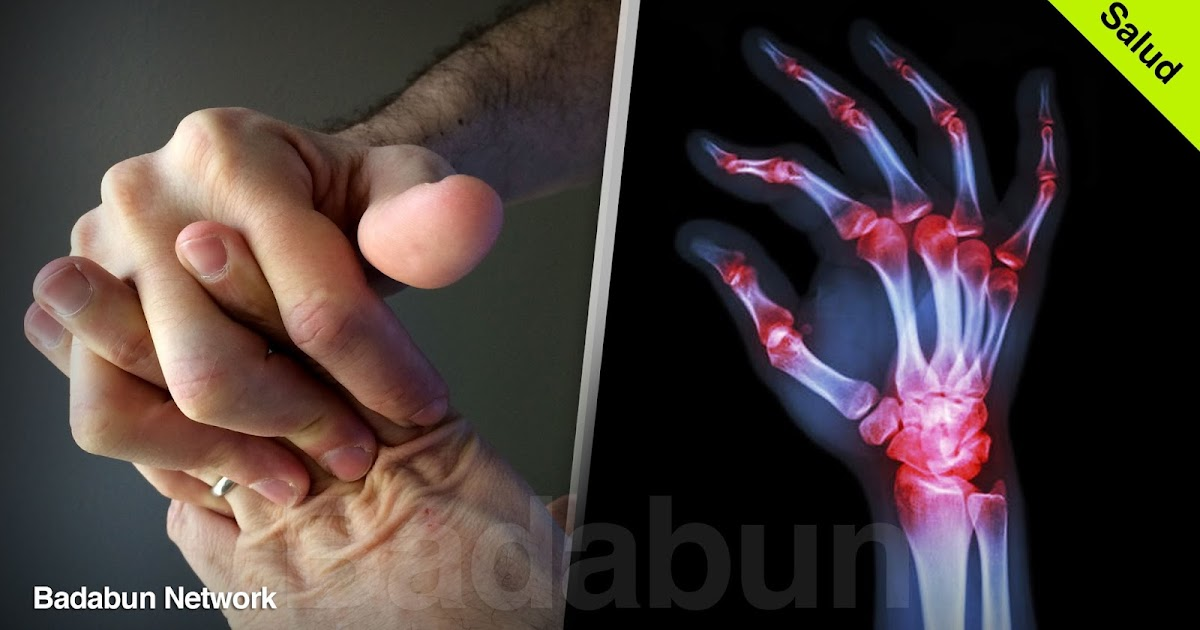 tronardedos huesos lastimarhuesos artritis mejorarartritis