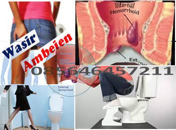 Jenis (macam-macam) Obat Penyakit Ambeien