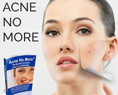 Acne No More, Acne ,No More