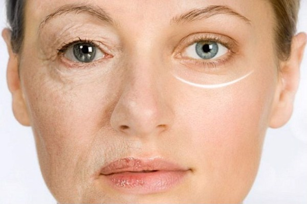 Bổ sung collagen uống để làm biến đổi làn da khuyết điểm