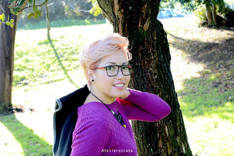jersey purpura