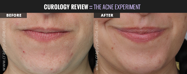 Curology Chin Before & After (4 Months) - The Acne Experiment