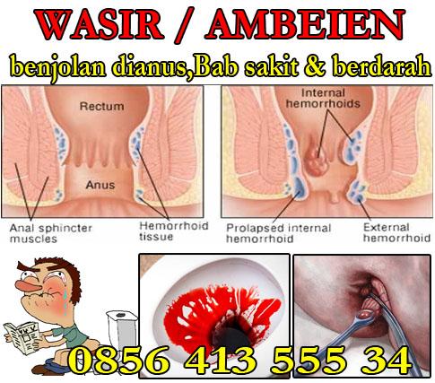 Obat Untuk Benjolan Ambeien