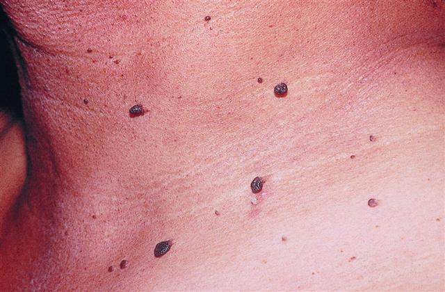 Discover Life How To Remove Moles Or Warts मस स From Our Skin