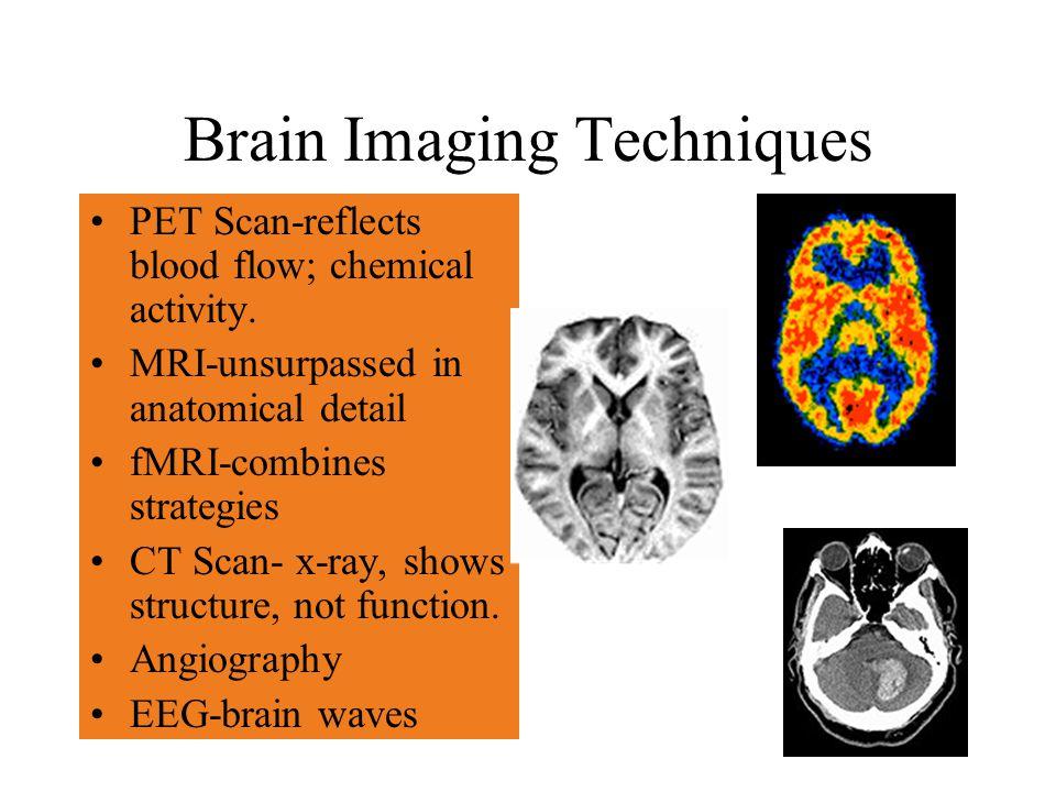 Glenoid labrum in ct shoulder anatomy | Medical radiology imaging ...