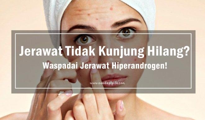 Cara Mengatasi Jerawat Yang Tidak Kunjung Hilang Waspada Jerawat Hiperandrogen Nanda Pipit N
