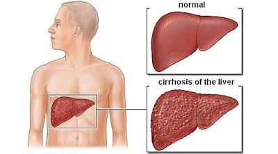 In cirrhotic liver cells die off and create scar tissue Cirrhosis Of The Liver: Causes, Symptoms, Diagnosis And Treatment