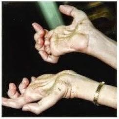 sla sclérose amyotrophique main de singe infirmier
