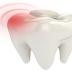 Petua Hilangkan Sakit Gigi Secara Semulajadi