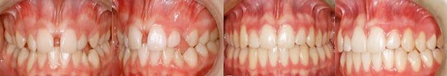 infos mutuelles et soins dentaires combien de temps prendra la fermeture d 39 espace entre les dents. Black Bedroom Furniture Sets. Home Design Ideas