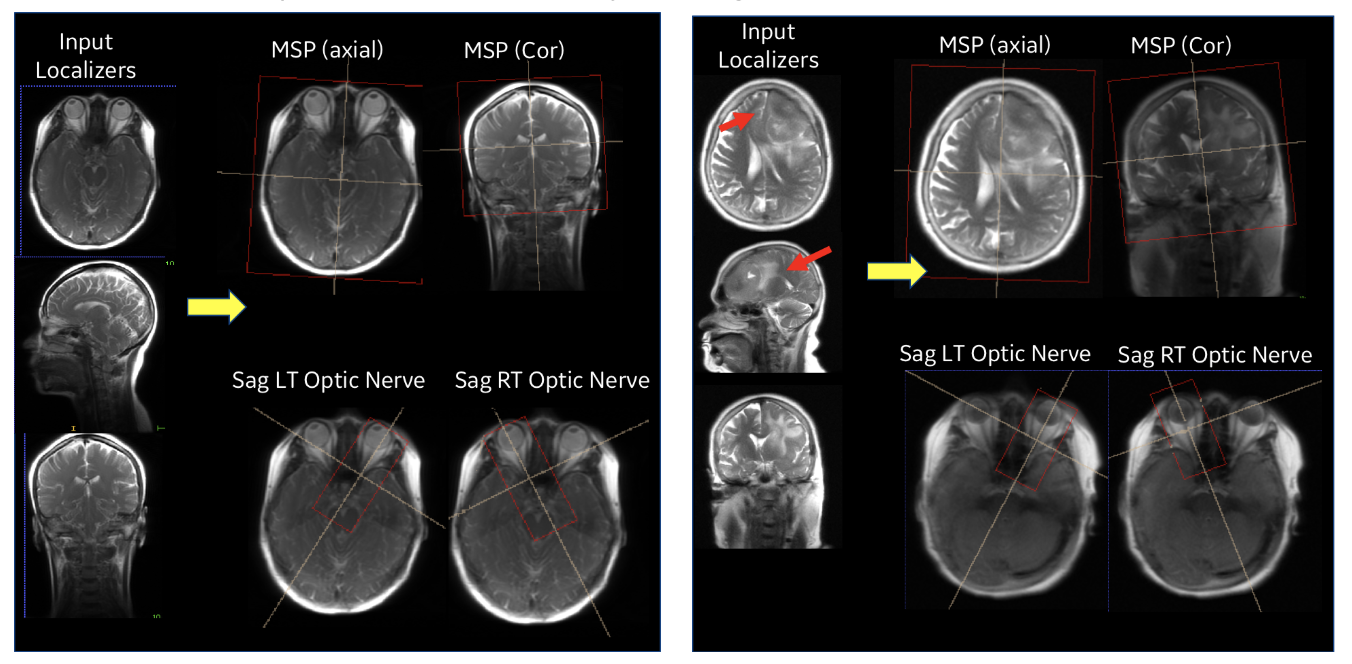 Performance of ISP in a normal subject case (left) and with pathology (right).
