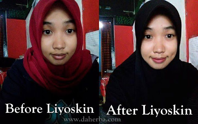 Cream Pemutih Wajah Putih Merona Testimoni Liyoskin
