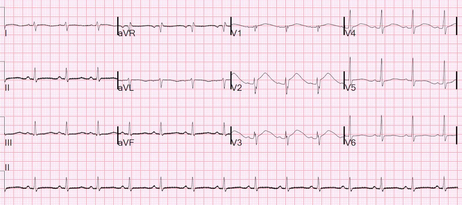 Dr  Smith's ECG Blog: Bupropion Overdose Followed by Cardiac