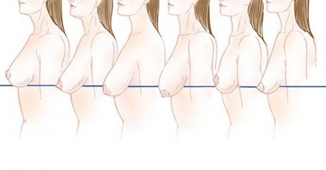 Как предотвратить провисание груди?