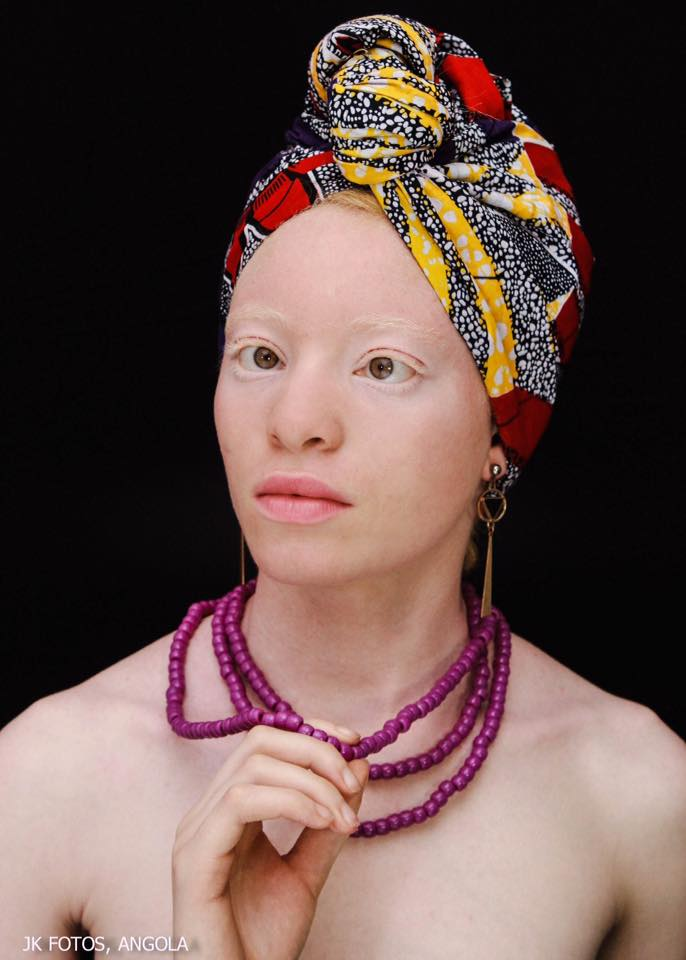 miss supranational angola 2018 winner strabismus albino albinism andreia muhitu