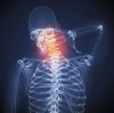 Cara Mengatasi Sakit Leher Bagian Belakang