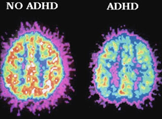 gambaran MRI ADHD