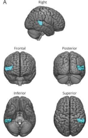 図:感情韻律に影響する上側頭回