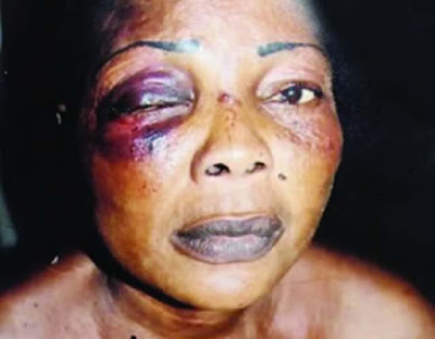 79-Year Old Mother-In-Law, Sisters-In-Law Beat Up House Wife Till She Lost Her Left Eye - PHOTO!