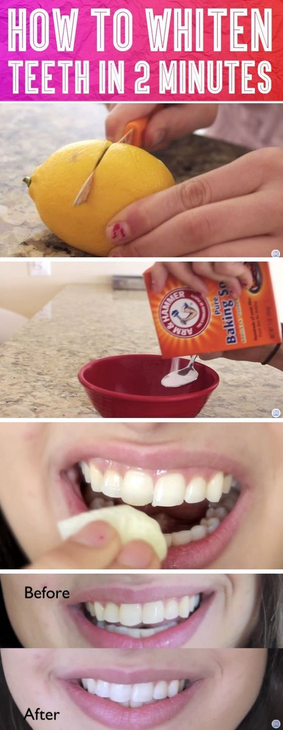 How to Whiten Teeth in 2 Minutes!