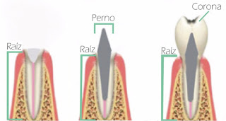 perno corona funda calza dental