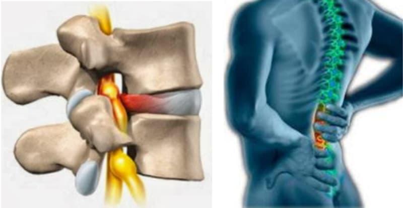 Sakit Pinggang Karena Syaraf Kejepit Dan Cara Mengatasinya