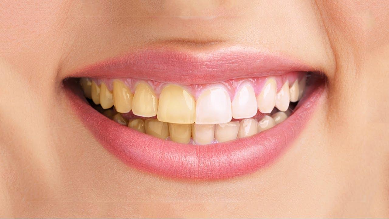 Cara Memutihkan Gigi Tambalan Cara Memutihkan Gigi