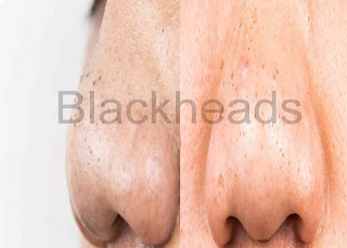 Proper Ingredients that Remedies Your Blackheads