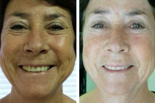 Take A Crack At These Yoga Face Aerobics Non Invasive Techniques Fade Eye Wrinkles