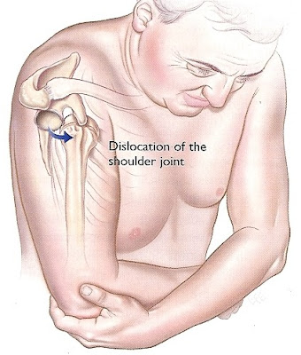 http://agasthya-ayurvedic.com/shoudler-joint-dislocation/