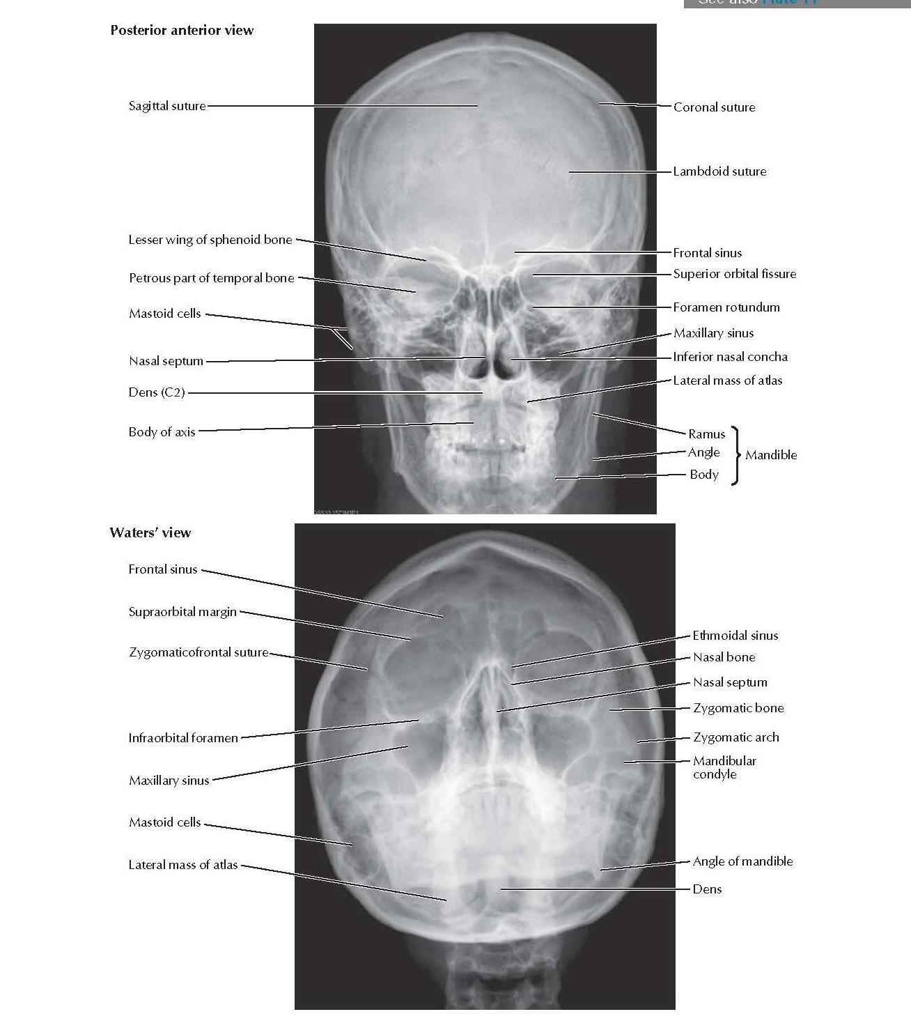 Skull: Radiographs Anatomy