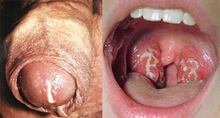 Obat Gonore (Kemaluan Bernanah) Jakarta, obat sifilis dan gonore (kencing nanah), kencing nanah sipilis, punca kemaluan lelaki keluar nanah, obat buat kencing keluar nanah, tanda penyakit gonore pada laki laki