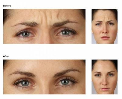Lorsqu'on vous injecte du botox, vous perdez ces émotions