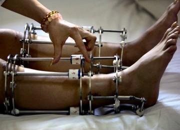 agen-gaple-operasi-penambah-tinggi-badan