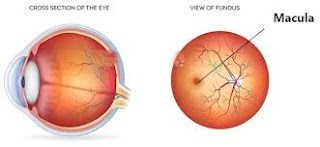 Hallucinations in peripheral vision