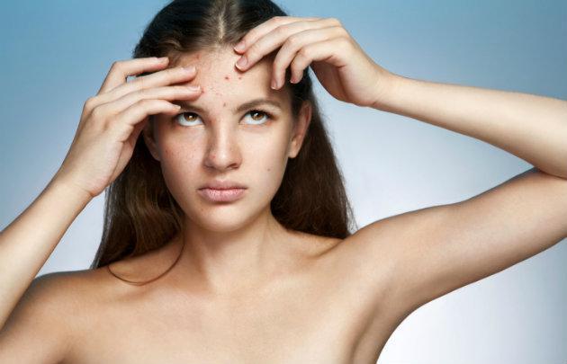 4 alertas de que podrías tener el síndrome de ovario poliquístico